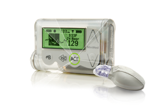 The Minimed 530G insulin pump with the transmitter.